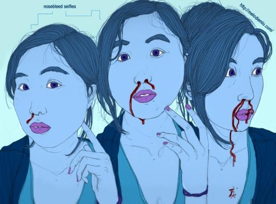 nosebleed1